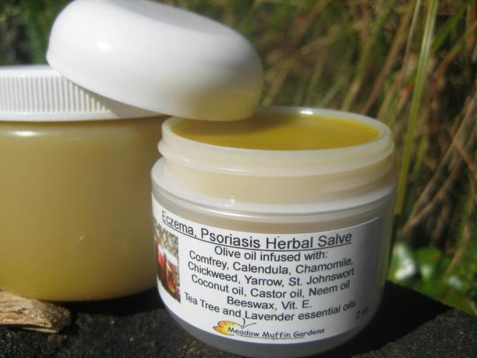 Irritated Skin, Rash, Dry Skin Herbal Salve, Conditions such as Eczema,